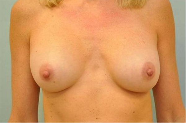 after - breast implant revision