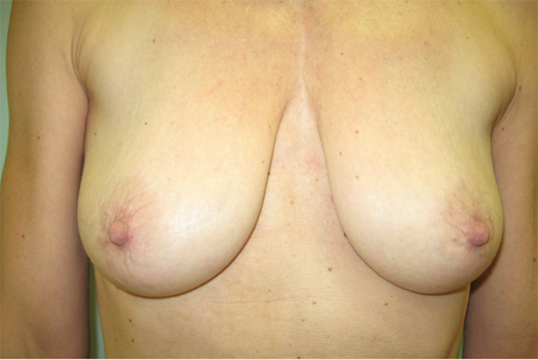 before - breast lift