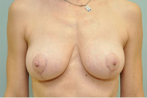 after - breast lift