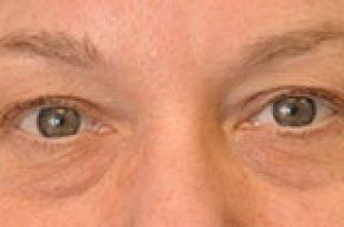 before blepharoplasty
