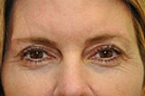 before - blepharoplasty
