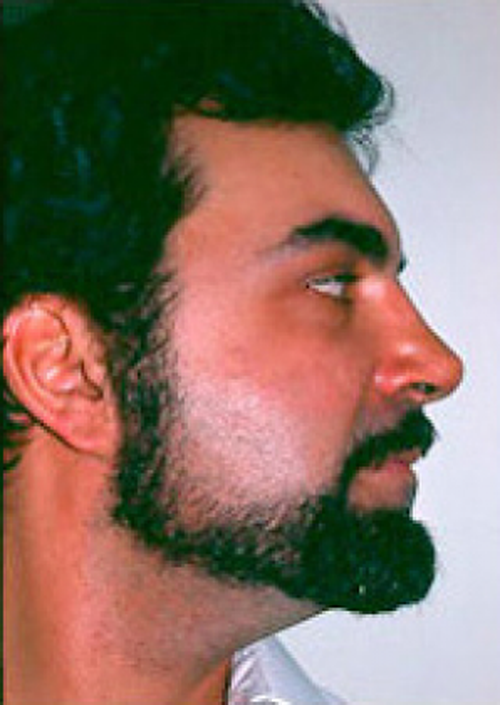 after ethnic rhinoplasty