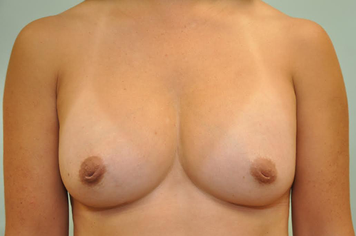 after- breast implants