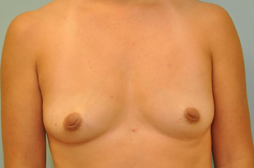 before- breast implants