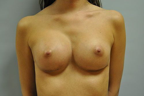after - breast reconstruction