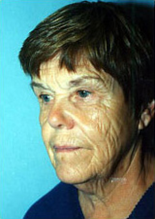 laser skin resurfacing - before