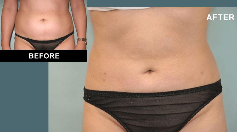 Liposuction Darien Ct Fairfield County Ct