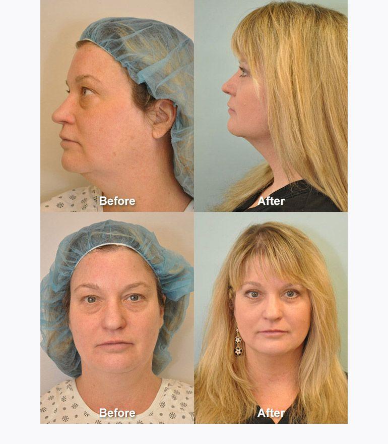 Chin And Neck Liposuction Darien Ct Dr Fredric Newman