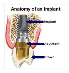 Anatomy of an Implant