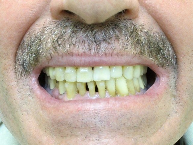 Patient before dental implants