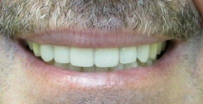 Patient after dental implants.