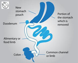Duodenal switch diagram