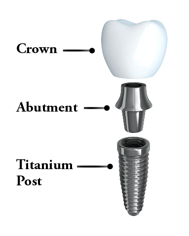 dental implants Kalamazoo