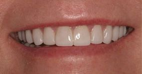 Porcelain veneers after photo