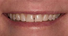 Porcelain Veneers before photo