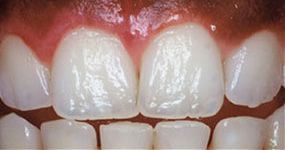 Teeth shown after gum contouring