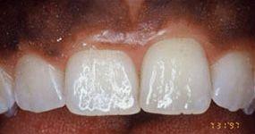 Teeth shown before gum contouring