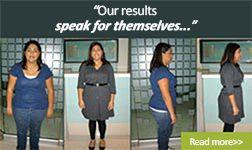 pérdida de peso con rny