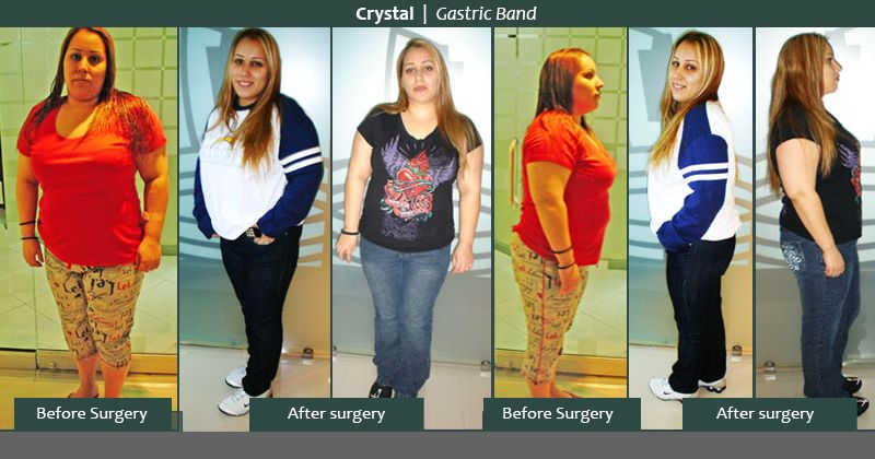Hmr weight loss shakes