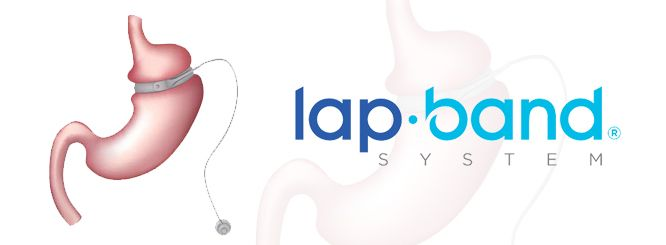 LAP-BAND logo and illustration of band placed around stomach