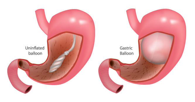 Deflated and inflated intragastric balloon