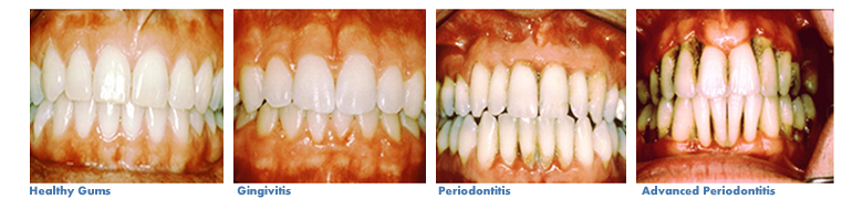 Photos showing patient with various stages of gum disease