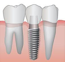 Graphic comparing structure of dental implants to natural teeth
