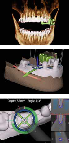 Imaging guide for dental implant placement