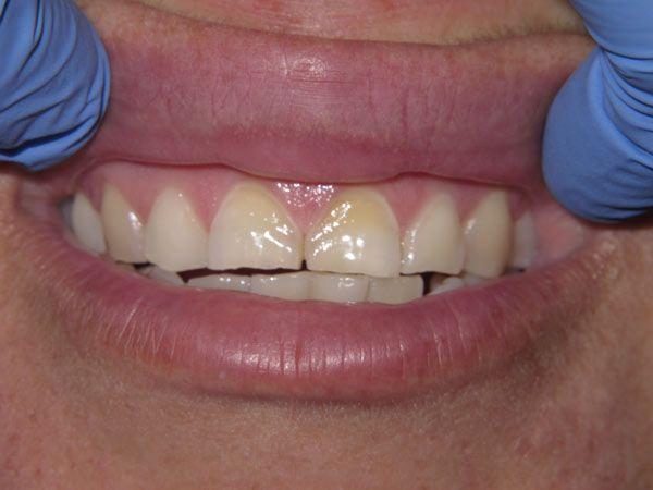 before dental care