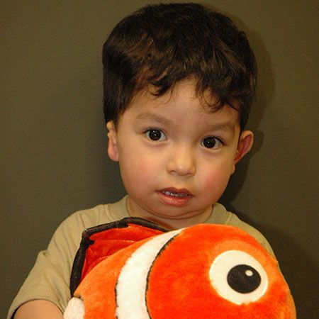 Little boy with misshapen ear holding fish plush