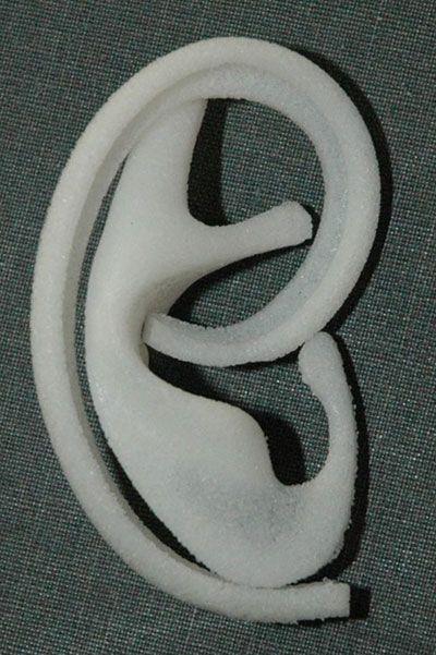 MEDPOR prosthesis