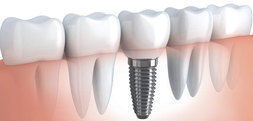 Illustration of implant-supported crown