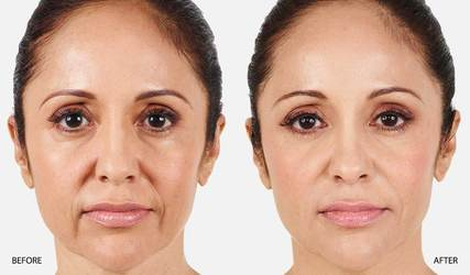 Before and after injectables
