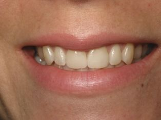 After photo of porcelain veneers patient