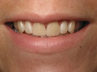 Before image of porcelain veneers patient