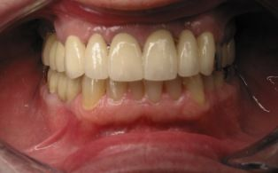 After photo of dental crowns patient