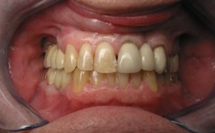 Before photo of dental crowns patient