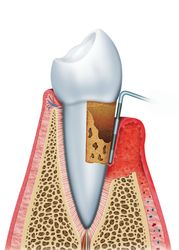 An illustrated example of gum disease.