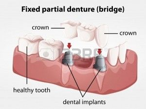 illustration-of-a-fixed-partial-denture-bridge