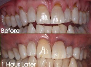 Gum Rejuvenation before and after photo