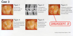 Photo of DIAGNOdent cavity treatment