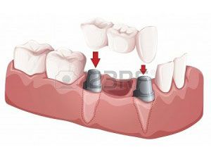 illustration-of-a-dental-bridge