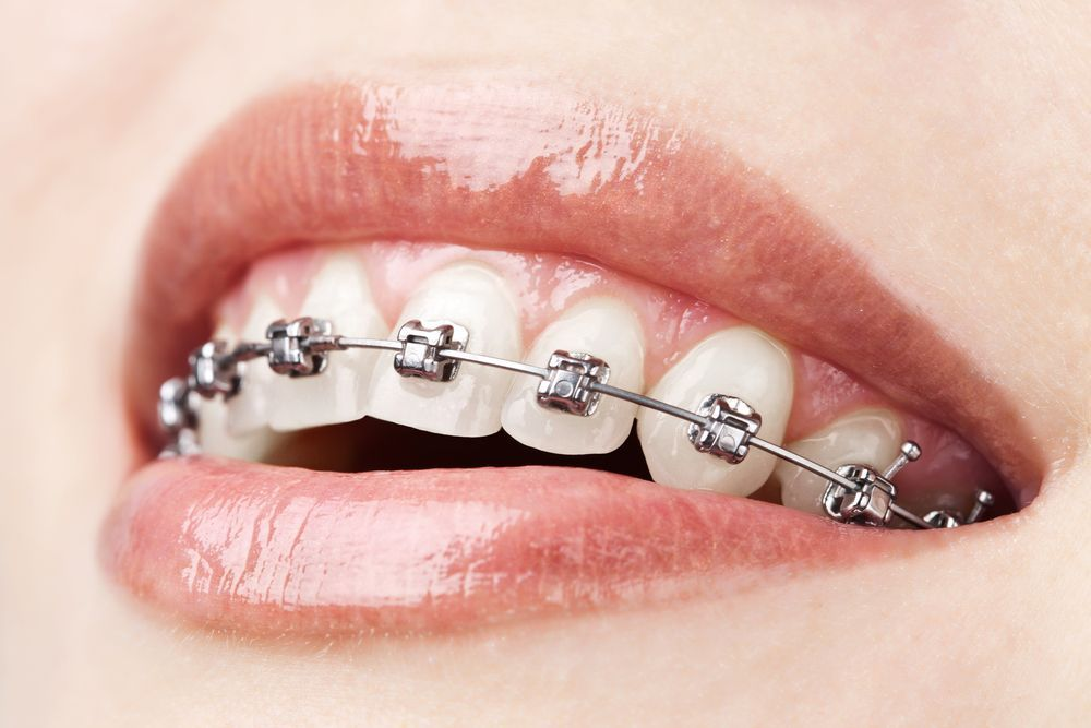 Close-up of a smile with metal braces