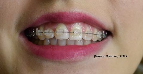 Orthodontic patient of Dr. Akhras showing clear braces