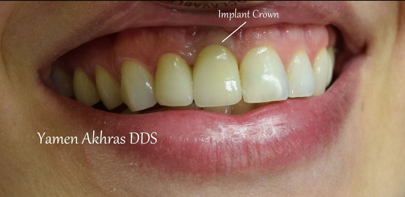 Dr. Akhras's patient after dental implant surgery with a crown.