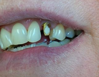 Dr. Akhras's patient before placing the dental implant.