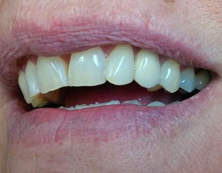 Dr. Akhras's patient after the implant and crown placement.
