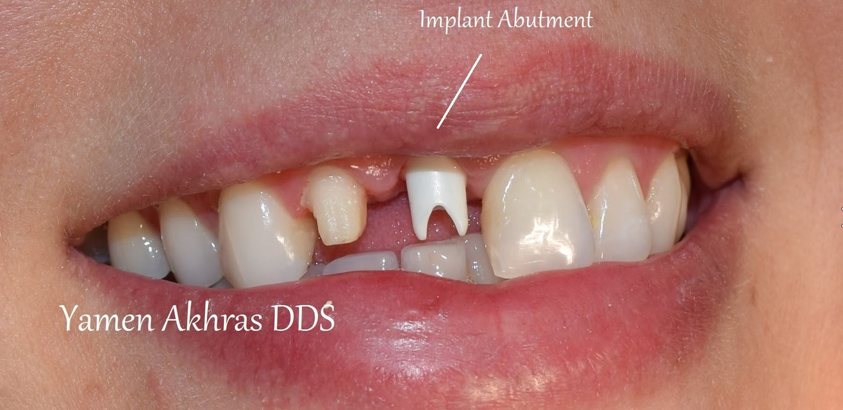 Dr. Akhras's patient with the dental implant and abutment placed.
