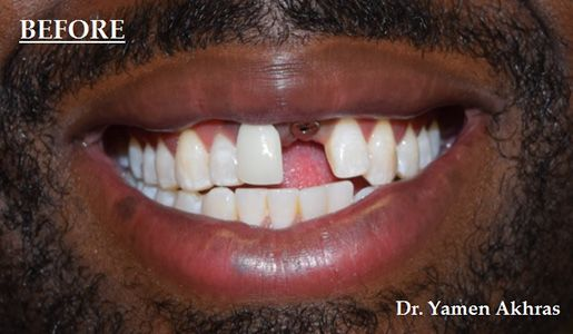 Photo showing Dr. Akhras's patient with a missing front tooth.