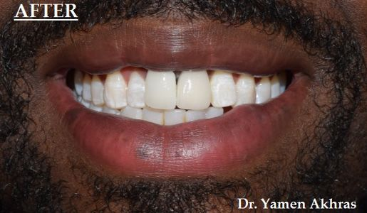 Photo showing Dr. Akhras's patient with an implant replacing the missing tooth.